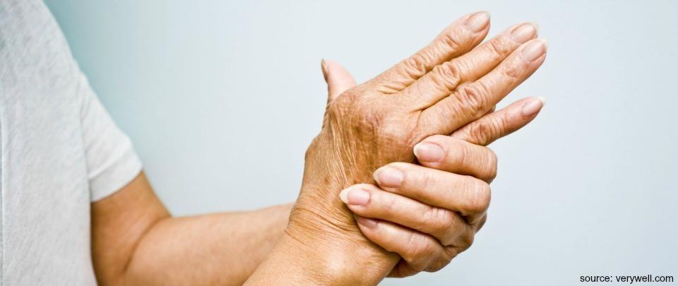 Economic Burden of Rheumatoid Arthritis
