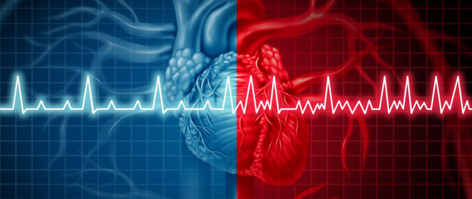 Ablation for Atrial Fibrillation: Pros and Cons