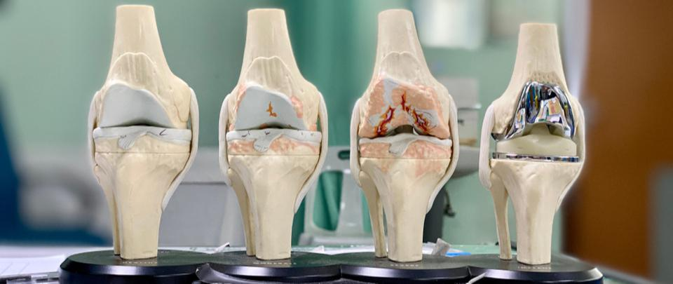 Osteoarthritis - Not Just An Ageing Condition
